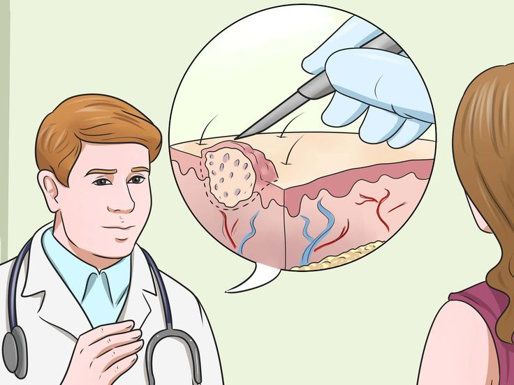 Warts are benign (non-cancerous) skin growths that grow on hands and most other parts of the body, including the face, feet and genitalia. Regardless of where they grow, they're caused by the human papillomavirus (HPV), which invades the...