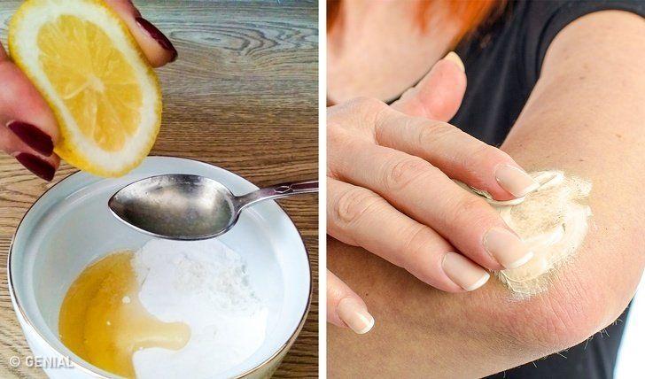 10 Remedios Naturales Para Aclarar La Piel De Las Rodillas Y Los Codos Manchas Oscuras En La Piel Blanqueamiento De Axilas Quitar Manchas De Axilas