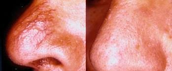 Facial Thread Veins - Before and After IPL (Intense Pulse Light)