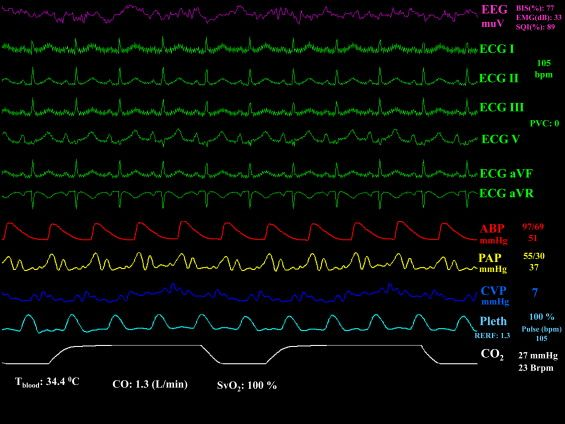 Ecg Hemodynamic Monitoring Strip - Nude Pics-7488