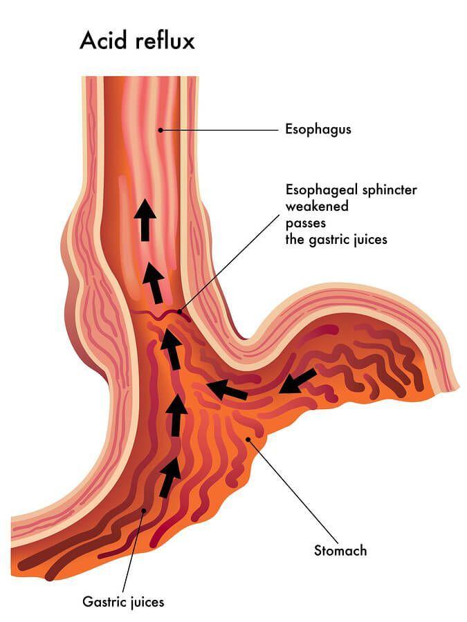 acid reflux diagram heartburnremedies heartburn remedies Acid Reflux Step Diagram acid reflux diagram heartburnremedies