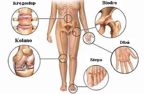 Ręce wydają się ciężkie, a zejście ze schodów powoduje klucie w kolanach i ogólny dyskomfort? Odkryj jak pokonać bóle stawów!