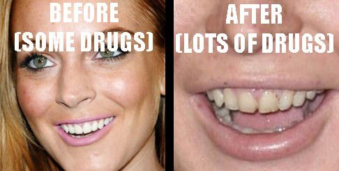 Lindsay+Lohan+After+Drugs | Lindsay Lohan Before and After