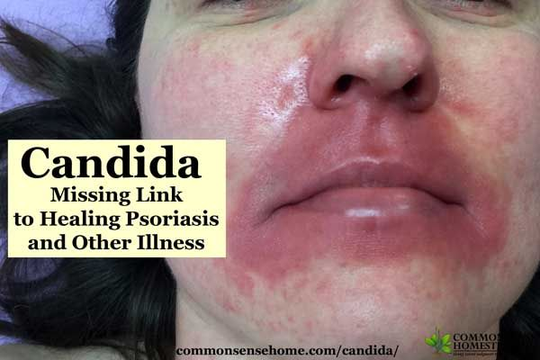 What is candida, what health problems may be linked to candida overgrowth, home candida test and how I discovered candida was a problem for me.