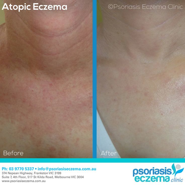 Atopic Eczema Before and After Results! After just 4 weeks of treatment the skin is completely clear! At the Psoriasis Eczema Clinic, we provide natural solutions based on medical research to treat the symptoms and address the underlying triggers of skin conditions. Contact us today to find out how we can help you! #integrative #dermatology #natural #treatment #solutions