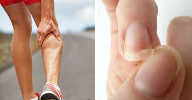 Capelli e unghie fragili, mal di testa e problemi alla pelle. Ecco di quali vitamine sei carente