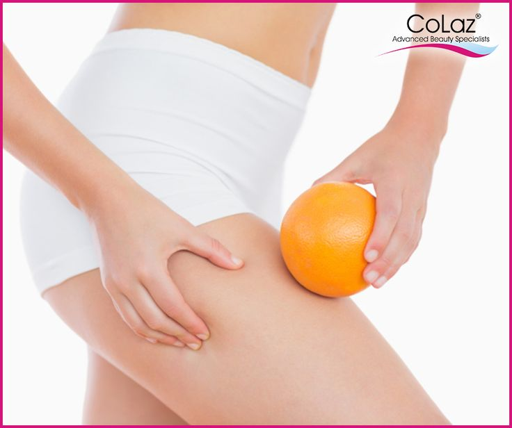 What causes Cellulite? Can cellulite be cured? Watch our video and get your answers. http://bit.ly/1dZs3Lz