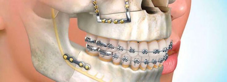 O preço cirurgia ortognática é acessível, variando de acordo com o processo e necessidade do paciente. Saiba mais em: http://www.sorrisoideal.com.br/preco-cirurgia-ortognatica