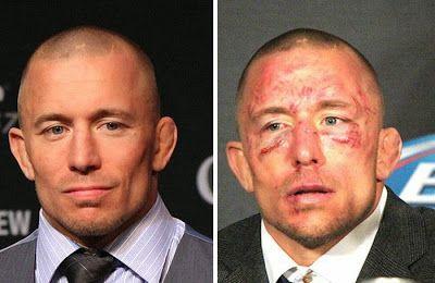 Visages de combattants de lUFC avant après combat   visages de combattants de l ufc avant apres combat 2