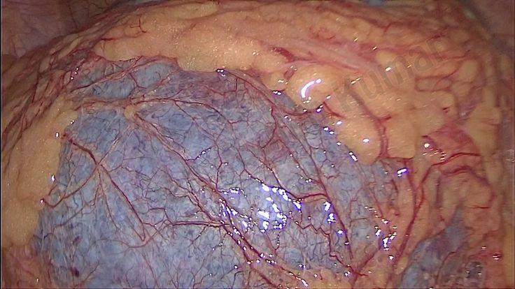 Laparoscopic Ovarian Torsion Surgery by Dr Neena Singh
