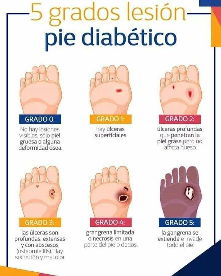 síntomas pies diabetes