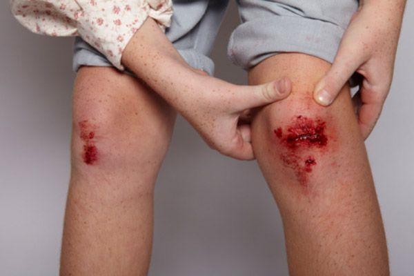 Cicatrización y hemorragias | 9Plantas