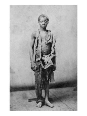 1863 picture of a dead young slave. Such a sad picture. Notice the body stand behind his feet.
