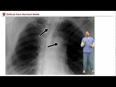 Critical Chest Xray interp in the ICU....excellent demonstration!!