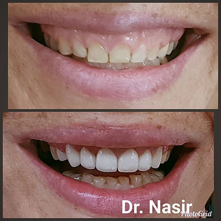 Another case of smile makeover using zirconia translucent veneers along with some gum contouring. Smile transformation in less then 10 days.. Dr.Nasir @indiandentistryexpress #implants  #smiledesign #smilemakers #celebritydentist #smilemakeover #aestheticdentistry #estheticdentistry #cosmeticdentistry #odontologia #veneers #crownandbridge #whiteteeth #dentistry #dentist #dentalassistant #dental #dentistrymyworld #dentistrylife #dentalstudent #clinical #teeth #pune #dubai #mumbai #instagram…