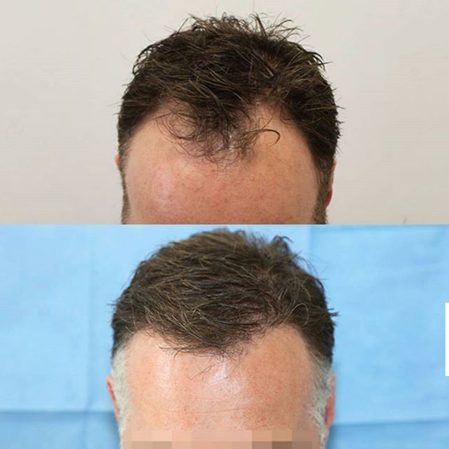 •Before and After*  Receding hairline- fixed✔  We transplanted 1266 grafts and a total of 3511 hairs for this restoration. 🖒  #hairtransplant  #beforeandafter  #fue  #follicularunitextraction  #recedinghairline  #hairtransplant #beforeandafter #results  #hairrestoration #cosmeticsurgery #hairloss  #hairlosstreatment