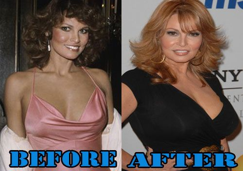 Young Breast Augmentation Before And After raquel welch wh...