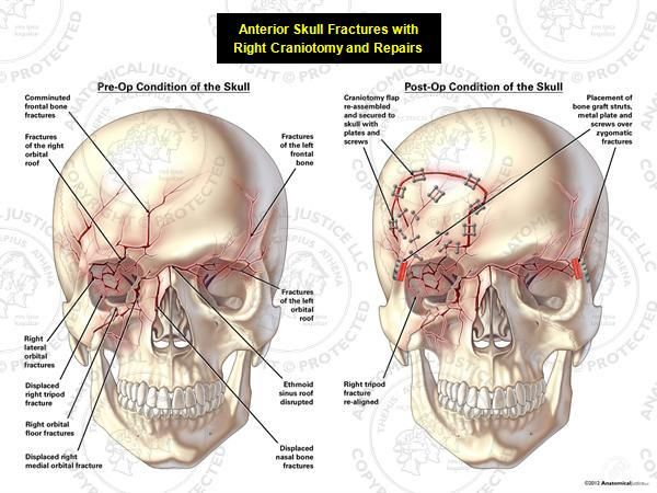 This exhibit depicts anterior fractures of the skull with a subsequent right craniotomy and repairs. Pre-operatively, fractures of the anterior skull can be seen, including: bilateral fractures of the frontal bone, bilateral orbital roof fractures, disruption of the ethmoid sinus roof, displaced fracture of the right nasal bone, displaced right tripod fracture, right orbital fractures, and right maxillary fractures. Bone graft struts and metal plates were used to fixate fractures of the…