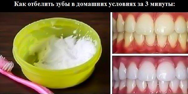 100%-й результат!  Как отбелить зубы в домашних условиях за 3 минуты: