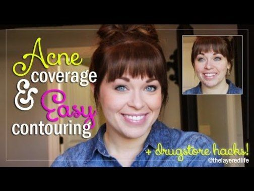 Covering Acne - Acne Breakouts, Spots, and Pustules *** Continue with the details at the image link. #CoveringAcne