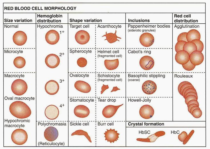 Medical Laboratory and Biomedical Science: Red Blood Cell Morphology Abnormalities