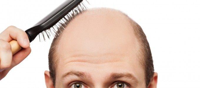 Saç Dökülmesinin Önlemenin Yolları