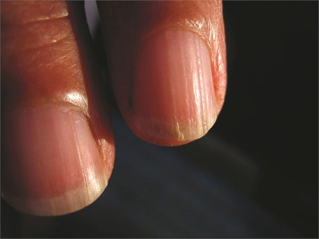 Ridges - • grooves on the nail plate • uneven growth • caused by injury, illness, or age