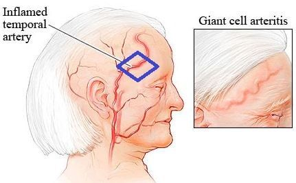 Giant Cell Arteritis Symptoms, Treatment, Diagnosis, Prognosis, Causes. It represents the cranial artery which passes through temporal lobe become inflamed.