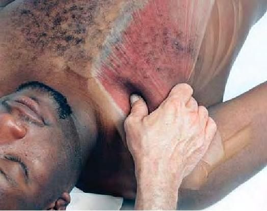 What is erotomania?