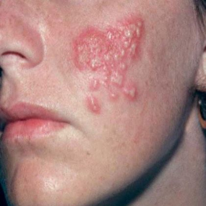dealing with herpes and dating