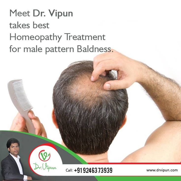 Meet Dr. Vipun takes best Homeopathy Treatment for male pattern Baldness.  For More Info Visit : http://www.drvipun.com/ For appointment call : ☎ 9246373939, ☎ 9963136745 ✉ drvipunr@gmail.com