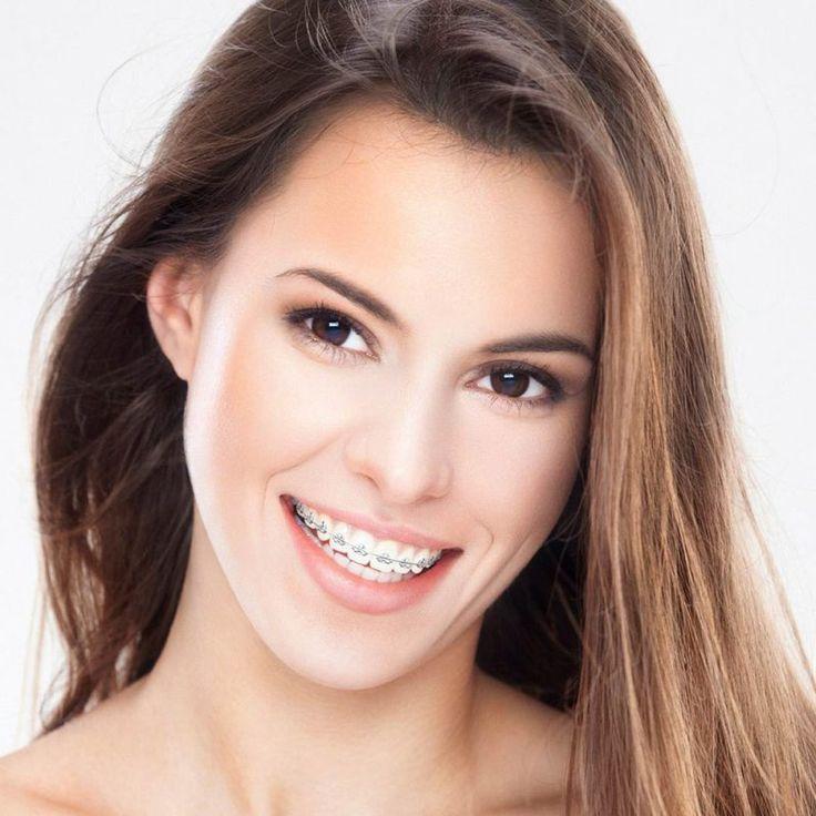 Ce aparat dentar să alegi. În funcţie de problemele ortodontice pe care le ai, medicul îţi va recomanda un aparat fix sau unul mobil. Cele mai populare