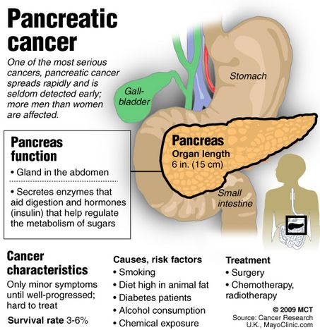 what are the stages of pancreatic Tests and procedures to stage pancreatic cancer are usually done at the same time as diagnosis there are three ways that cancer spreads in the body.