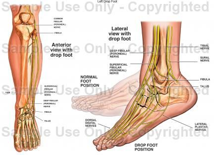 This is a medical condition that makes it hard for a person to flex the muscles that connect the ankle and the toes. This makes it hard for a person to lift the foot up and make this walking to be impossible and painful to do so causing dragging of the foot. This is not a disease as such as it may be a symptom of another condition that may be affecting a person and as a result causing this type of problem.