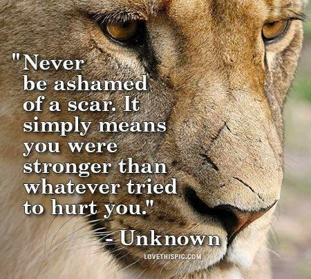 """""""Never be ashamed of a scar. It simply means that you are stronger than whatever tried to hurt you."""""""