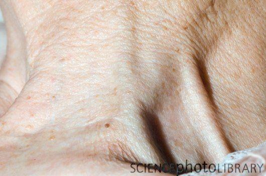 Raised jugular venous pressure (JVP)