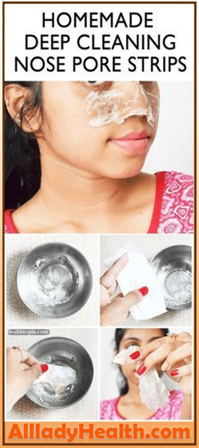 BEAUTY DIY – DEEP CLEANING NOSE PORE STRIPS #li…