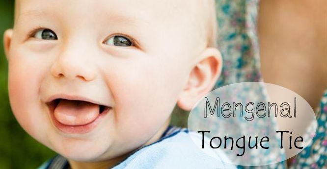 Perlekatan sudah benar, ASI pun melimpah, namun bayi masih menangis kelaparan & berat badan menyusut. Bisa jadi tongue tie! Klik link di atas untuk informasi lengkapnya