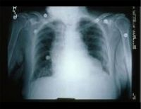The Framingham criteria  for the diagnosis of heart failure