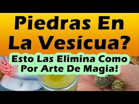 ELIMINA LAS PIEDRAS EN LA VESICULA COMO POR ARTE DE MAGIA Eliminar Piedras Vesicula Sin Cirugia - YouTube