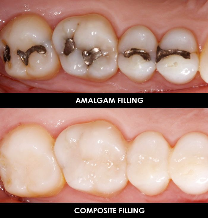 Amalgam or Composite Fillings – Which one do I want? | Blog