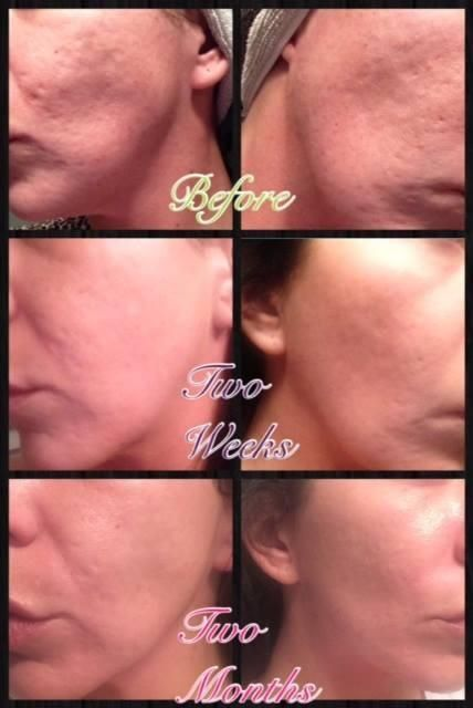 Acne Scars disappearing. Thanks to the AMP roller from Rodan + Fields! Wow!!! www.laurajantz.myrandf.com
