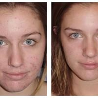 Visit our site http://zrocderm.com/ for more information on Dermatologist Fort Lauderdale. Dermatologist Fort Lauderdale is a clinical physician that focuses on the treatment of problems that have an effect on the skin, nails and hair. A few of these health conditions include, but are not limited to, acne breakouts, dermatitis, skin psoriasis, skin cancer cells, moles, melanomas and skin lumps.