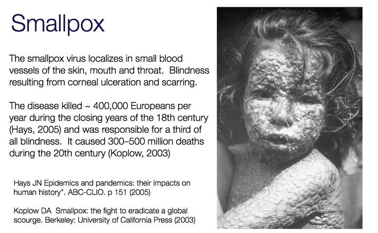 small pox images - Buscar con Google | epidemic and ...