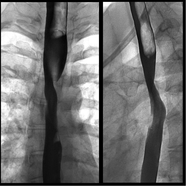 Dysphagia lusoria: aberrant right subclavian artery: Barium swallow reveals fixed narrowing of the oesophagus at the level of the aortic arch without mucosal abnormality.  The narrowing runs oblique from inferior left to superior right and involves the posterior aspect of the oesophagus.  This is consistent with extrinsic compression by a retro-oesophageal aberrant right subclavian artery resulting in dysphagia lurosia.