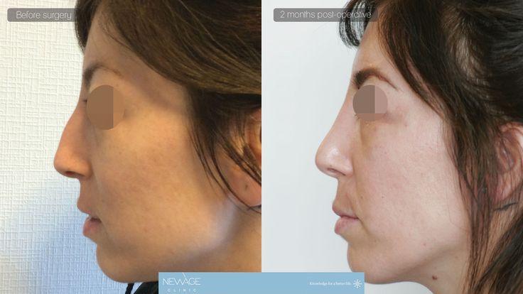 Nasenkorrektur (Rhinoplastik) Dr. OZGE ERGUN  #Ästhetische  #Fettabsaugung #plastischeChirurgie #Schönheit #Nasenkorrektur