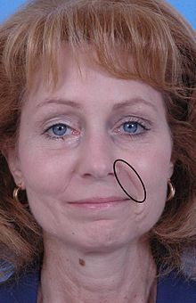 how to get rid of smile lines permanently