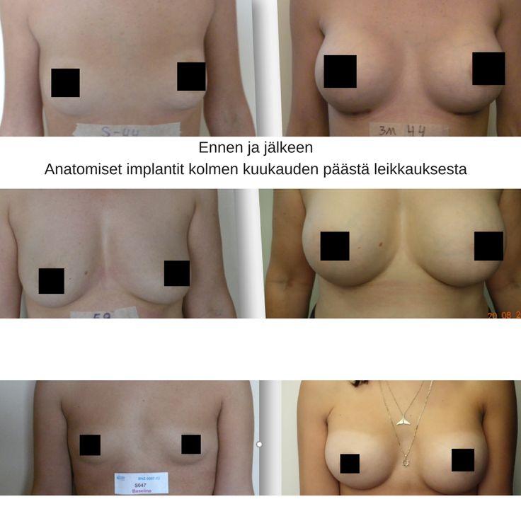 B-Lite-implantit ovat 30 % kevyemmät kuin markkinoiden muut implantit. Lisätietoja: riikka.veltheim@cityklinikka.fi