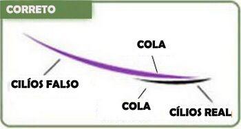 Alongamento fio a fio é um processo que não prejudica a saúde de seus cílios pois a cola usada é depositada somente no cílios longe da pele e quando você fizer a renovação dos cílios eles caem naturalmente sem prejuízos ao seus olhos.