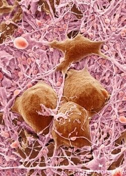 -Nerve cells and glial cells, SEM by ScienceIllustrated, via Flickr.